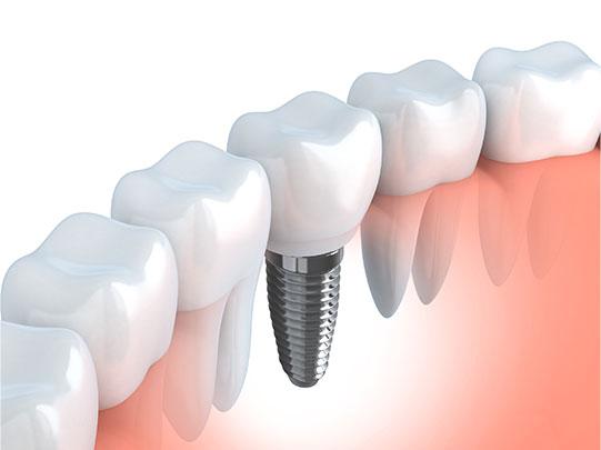 new-teeth